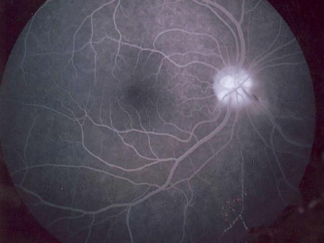 Fluoresceínová angiografia - snímok