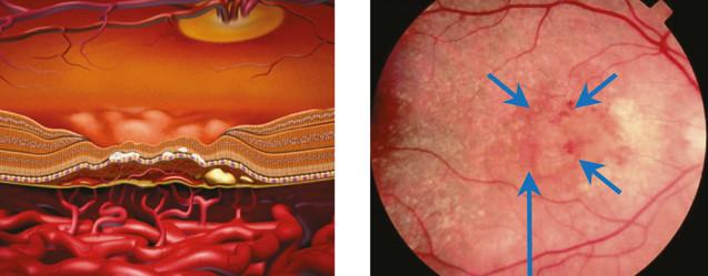 vekom podmienená degenerácia makuly (VPDM)